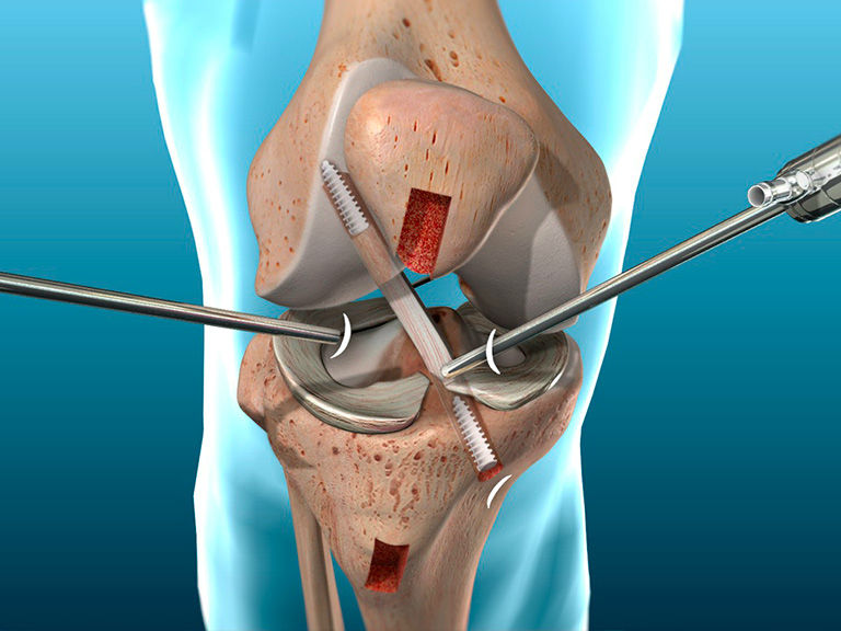 orthopedic vacations surgery cancun acl repair complete