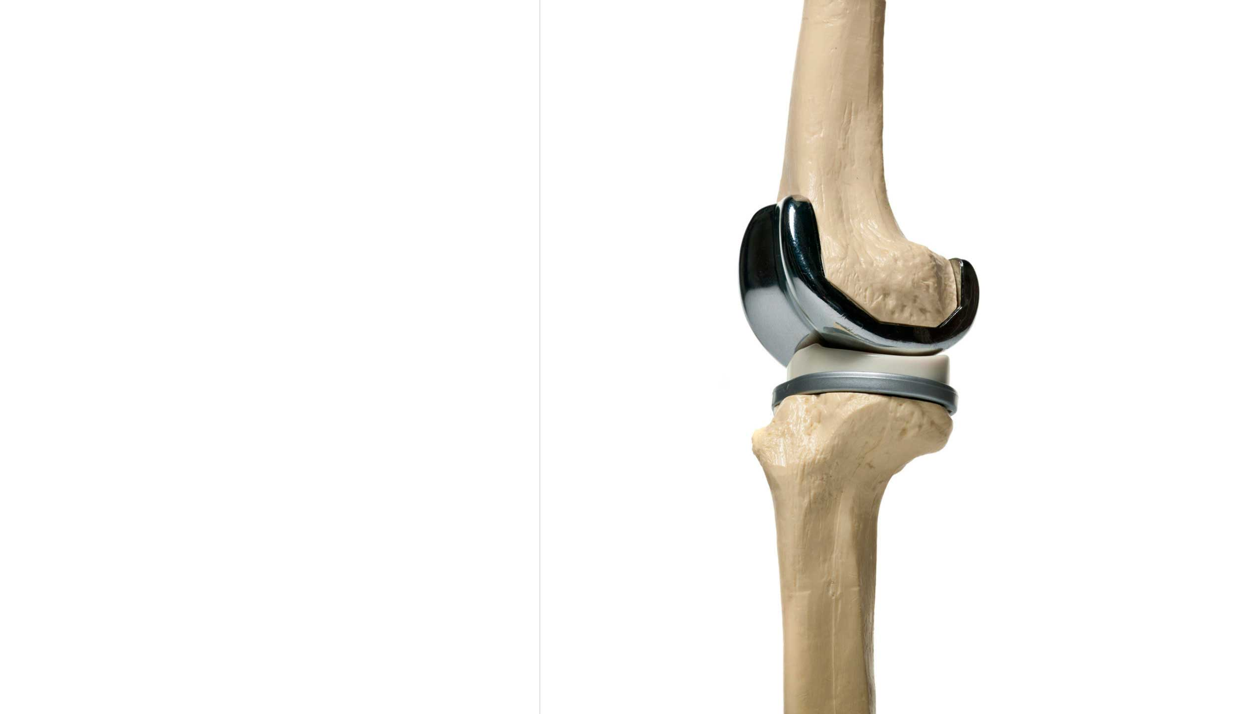5 Facts about State of the Art Knee Prosthesis
